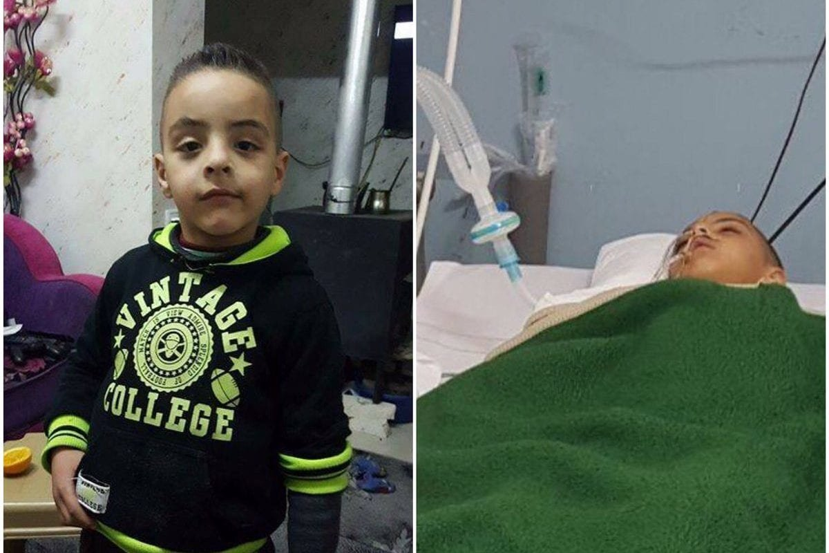 7-year-old Palestinian Hasan Ahmad Issa was hit in the head by an Israeli tear gas grenade during protests in the occupied West Bank on 21 May 2017 [Twitter]