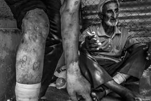 A man show the damage done to his body through the abuse of drugs. There is a crack epidemic which is devastating the poverty-stricken Arab Al-Ahwaz region of Iran [KhouzNews.ir]