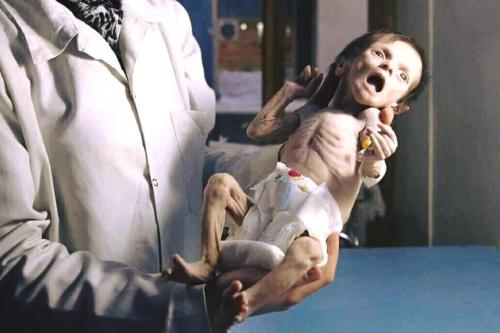 Sahar died of malnutrition in besieged Eastern Ghouta, Syria, on 22 October 2017. She was just 34 days old.