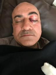 Bruises can be seen after Hisham Geneina was attacked outside his home in Cairo, Egypt