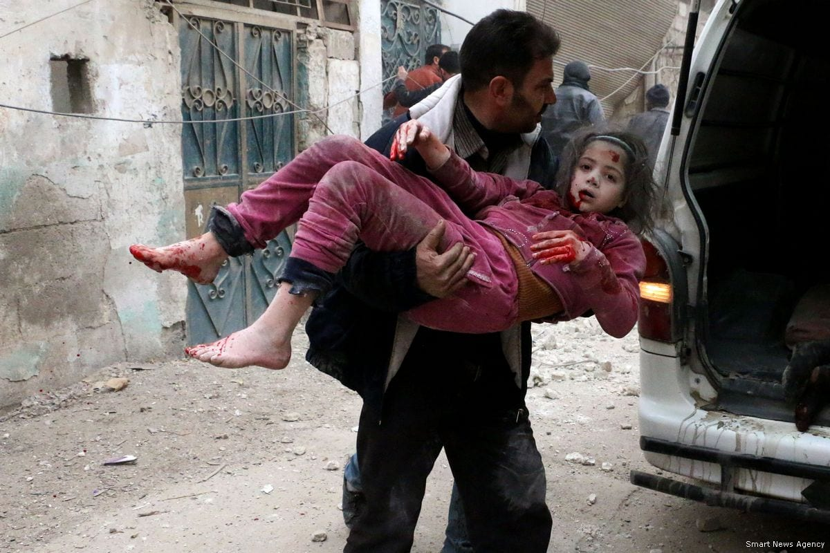 A Syrian girl is severely injured after the Assad Regime carried out air strikes in Eastern Ghouta, Syria on 23 February 2018 [Smart News Agency]