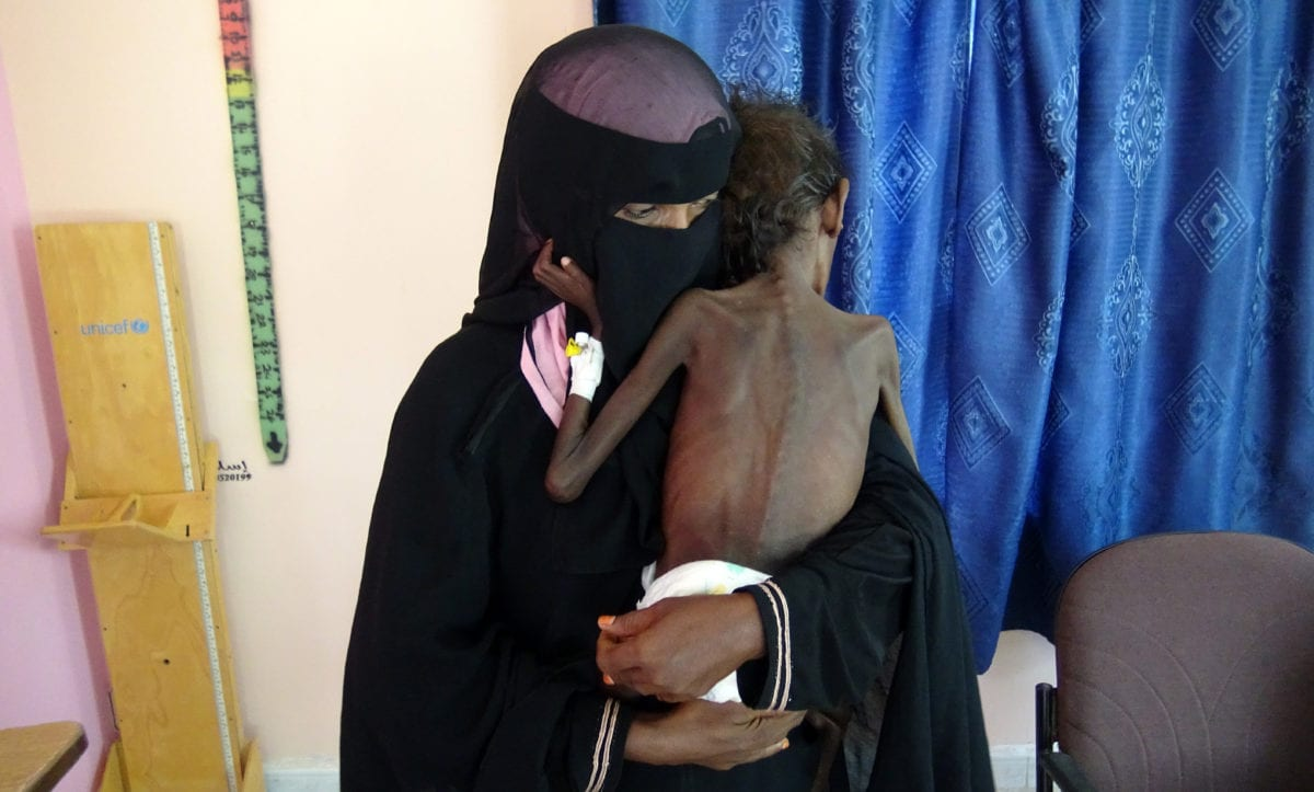 This picture taken on November 22, 2018 shows Yemeni mother Nadia Nahari holding her five-year-old son Abdelrahman Manhash, who is suffering from severe malnutrition and weighing 5 kilograms, at a treatment clinic in the Khokha district in the western province of Hodeidah. (Photo by /AFP/Getty Images)