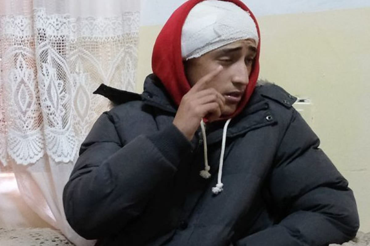 Fawaz 'Abed, a Palestinian youth fractured his skull after Israeli forces fired a sponge at his head on 6 January 2019