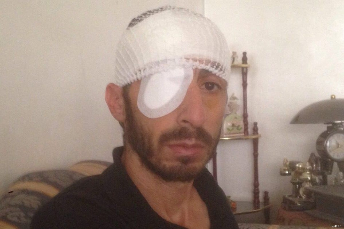 Mazen Abu Humus was injured after Israeli forces opened fire on him and his wife as they stood in their own home behind a closed window [Twitter ]