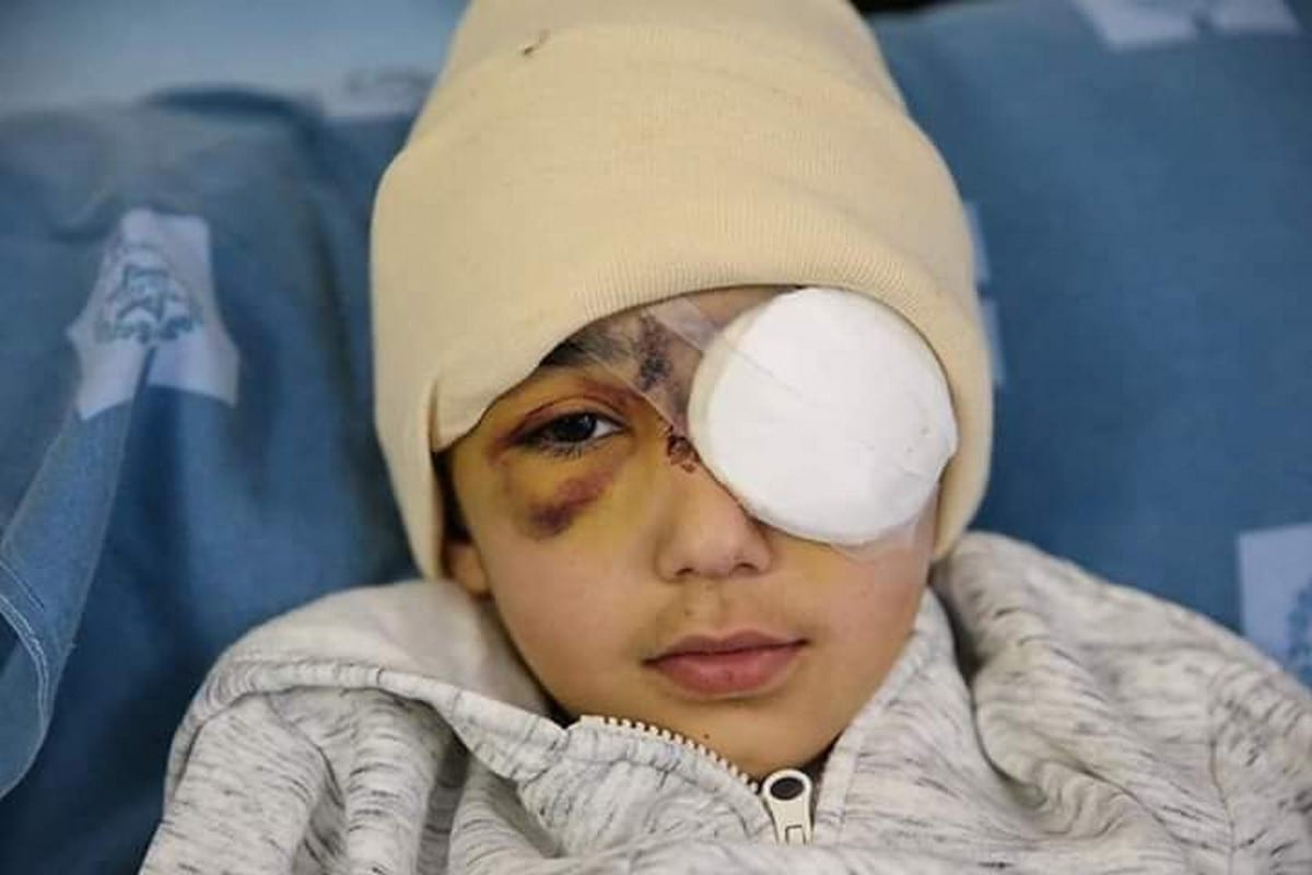 Eight-year-old Palestinian boy, Malik Issa, was shot in the face by an Israeli officer in Jerusalem, 22 February 2020 [Reynad Ahmed/Twitter]