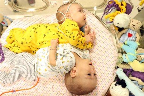 Conjoined twins Bessam and Ihsan are seen at Ankara Medical Faculty Hospital in Ankara, Turkey on 4 February 2021 [Mehmet Kaman/Anadolu Agency]