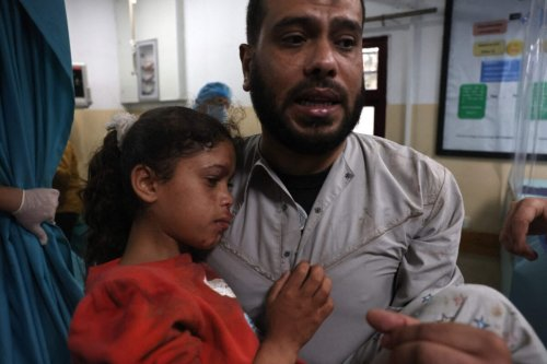A Palestinian man carries a wounded girl at a hospital in the northern Gaza Strip amid a flare-up of Israeli-Palestinian violence, on May 10, 2021. - Nine people were killed amid air raids in the Gaza Strip, local authorities said, but it was not clear whether the fatalities were caused by Israeli strikes. Israel has confirmed it was bombing Hamas targets in Gaza in response to earlier rocket fire directed towards Israel. (Photo by MOHAMMED ABED / AFP) (Photo by MOHAMMED ABED/AFP via Getty Images)