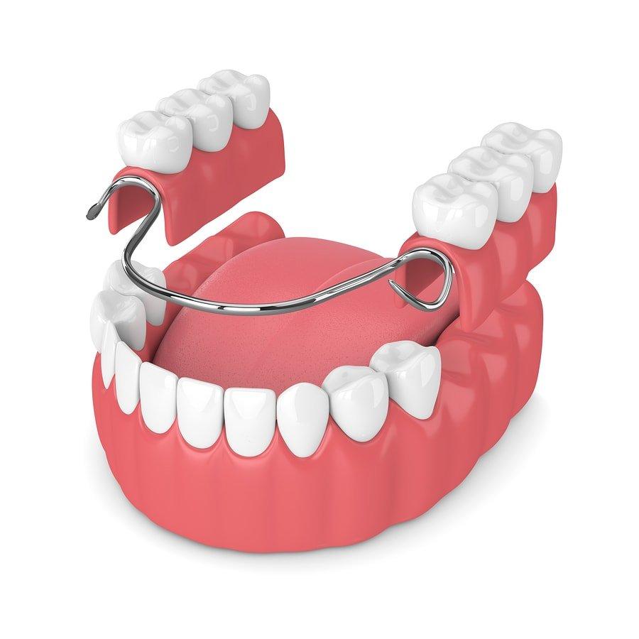 hight resolution of diagram partial denture