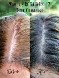 Womens ROGAINE for Thinning Hair