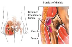 Hip_Bursitis