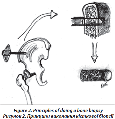 The Role of Bone Biopsy in Bone Diseases — Analytical