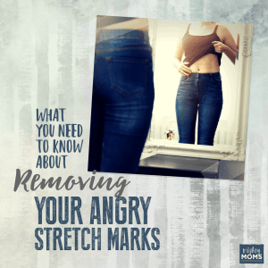 What You Need to Know About Removing Your Angry Stretch Marks - MightyMoms.club