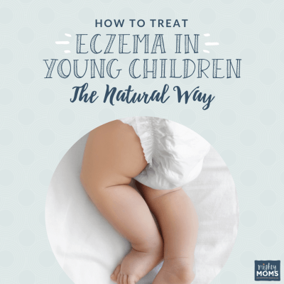 How to Treat Eczema in Young Children the Natural Way