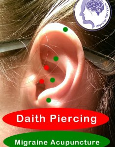 Daith piercing for migraines also hope or hype rh migrainesavvy