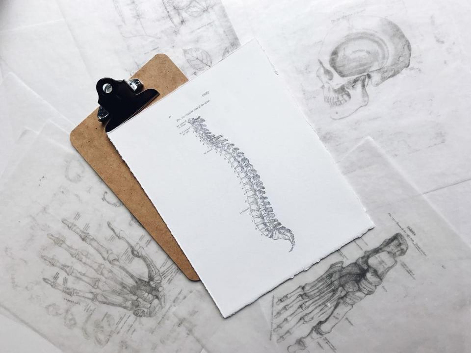 Drawing of a spine from a chiropractor's office