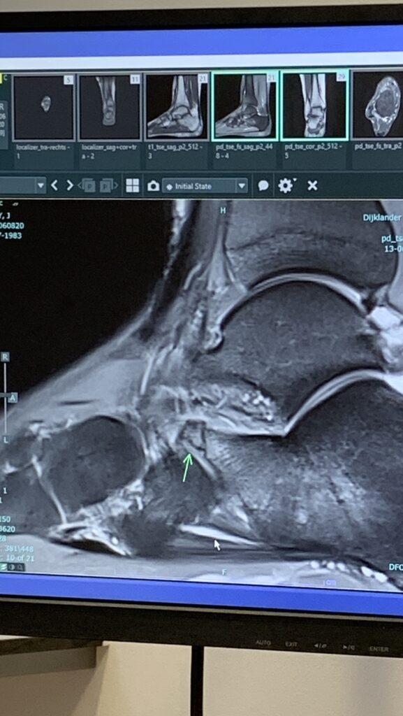 MRI van de gebroken enkel