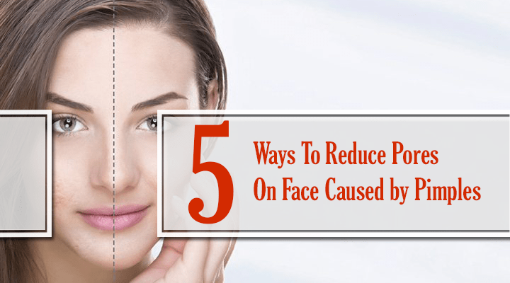 reduce pores on face caused by pimples