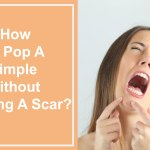 how-to-pop-a-pimple-without-leaving-a-scar