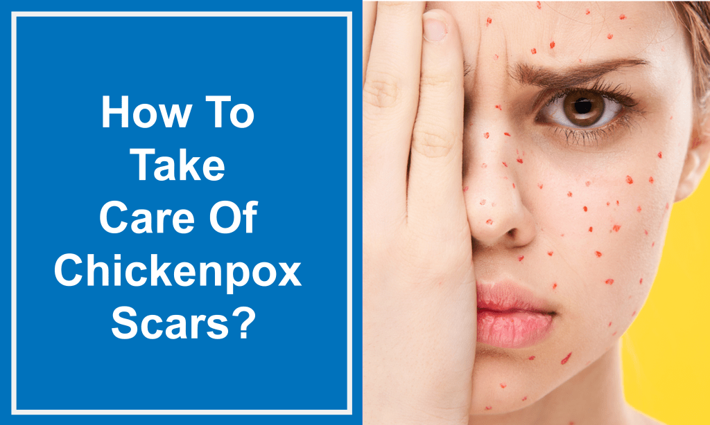 How To Take Care Of Chickenpox Scars