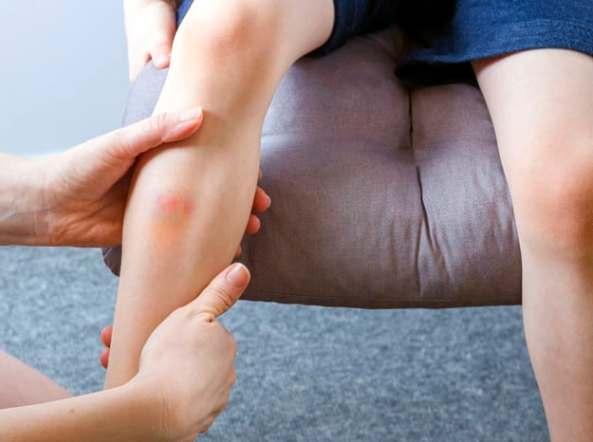 criança com hematoma na perna