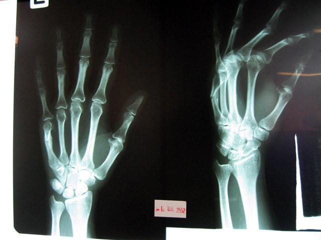 broken-hand-ldf