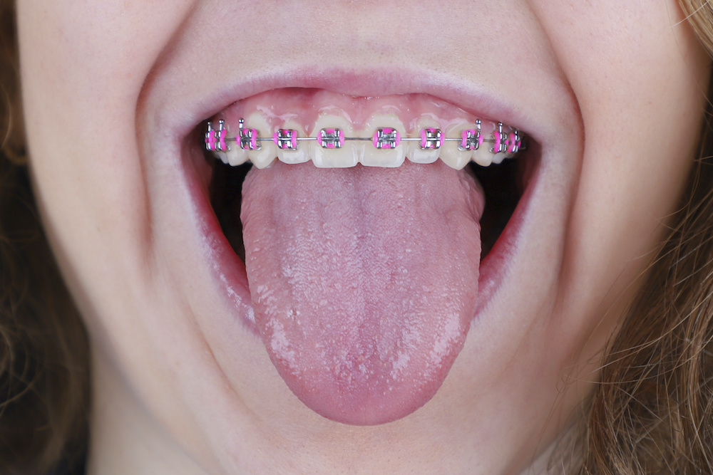 Are Rubber Bands on Braces Important?   Ft Collins CO ...