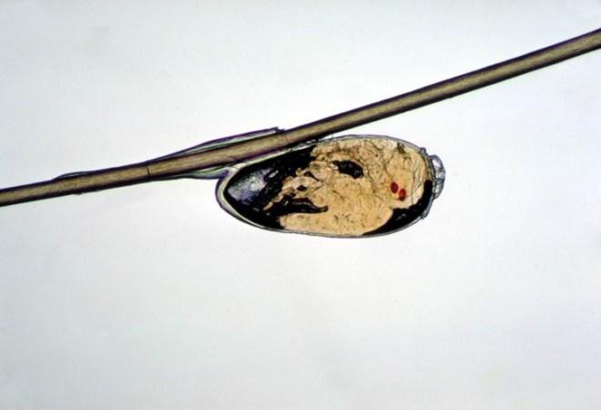 Hnida vši sa drží na vlase vďaka špeciálnemu lepidlu na báze bielkoviny