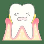 歯周病の歯のイラスト