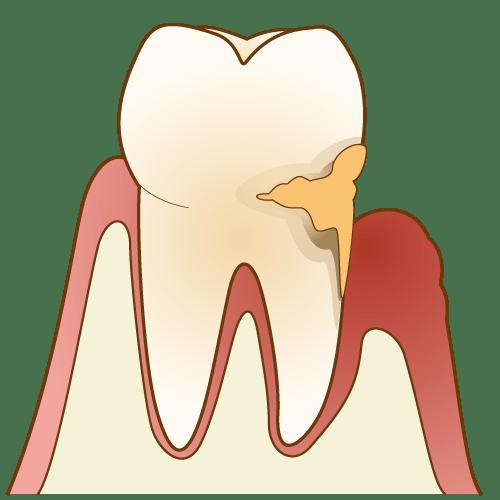 歯周病の歯