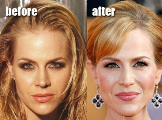 15 Best Celebrity Plastic Surgery Before and After