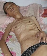 徐大为被沈阳东陵监狱迫害的骨瘦如柴、身上有多处电击印痕,臀部皮肤坏死。