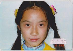 '图2:照片摄于一九九九年六月,皮肤奇迹般正常了'