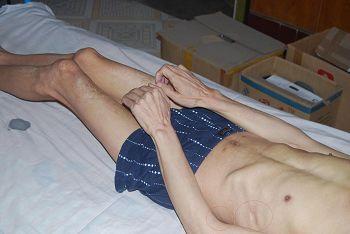邵承洛肋部被鞋刷子捣烂感染,全身肌肉萎缩体重不足90斤