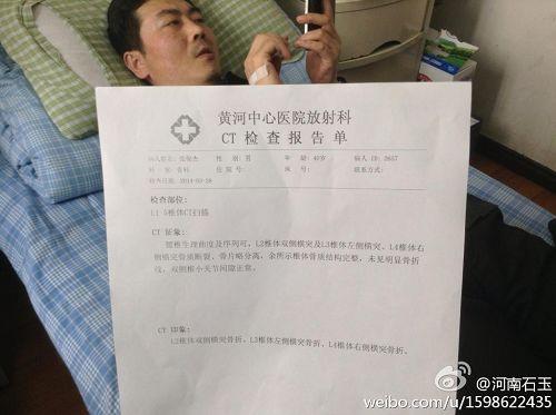 '被警察殴打后住在医院的律师张俊杰,医生诊断腰椎三处骨折'