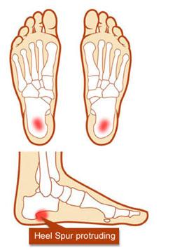 骨刺痛癥的成因及治療方法(上) - 明醫網