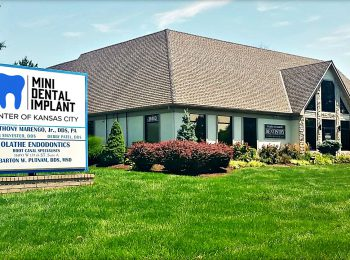Mini Dental Implant Center Kansas City