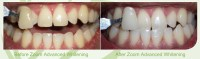 Teeth Whitening Skegness | Mint Dental Care Lincolnshire