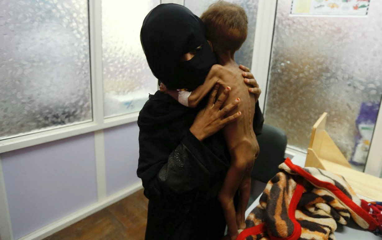 A woman brings her child to hospital in Yemen to be treated for severe acute malnutrition.