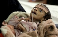 In this Tuesday, March 22, 2016 photo, infant Udai Faisal, who is suffering from acute malnutrition, is hospitalized at Al-Sabeen Hospital in Sanaa, Yemen. Udai died on March 24. Hunger has been the most horrific consequence of Yemen's conflict and has spiraled since Saudi Arabia and its allies, backed by the U.S., launched a campaign of airstrikes and a naval blockade a year ago. (AP Photo/Maad al-Zikry)