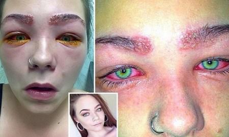 tylah durie allergie australie