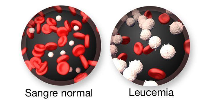 La Leucemia en Niños