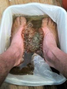 Foot Bath after 20 mins