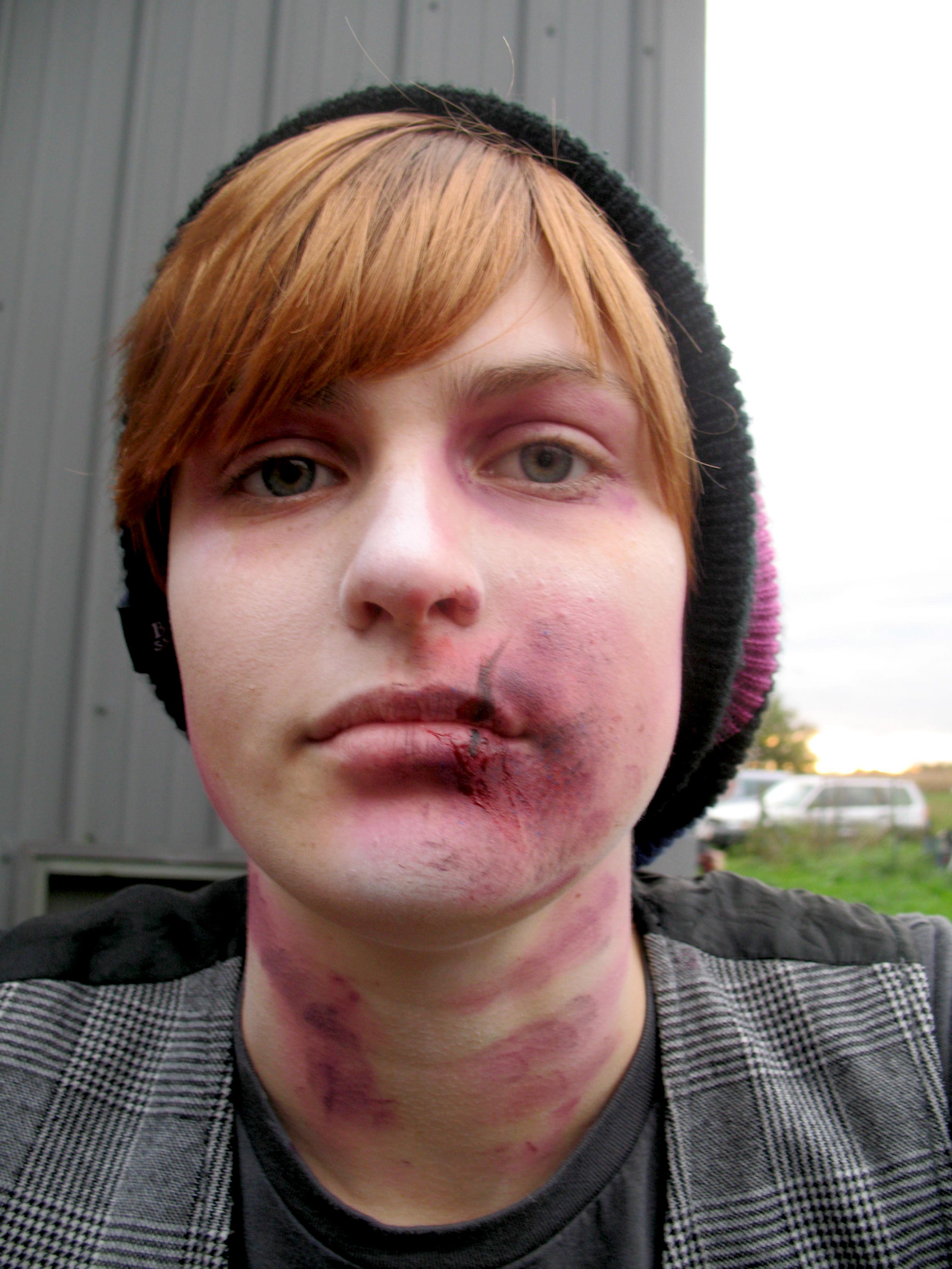 abuse make up, swollen lip
