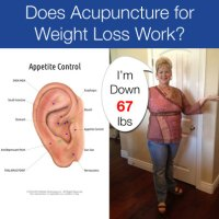 Does Acupuncture for Weight Loss Work? - Acupuncture ...
