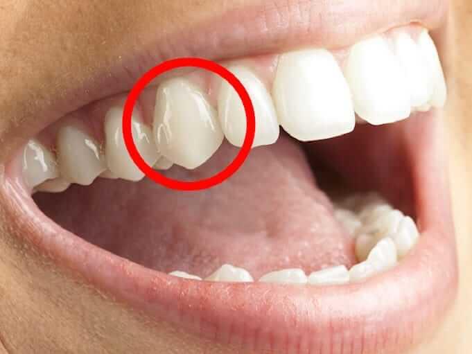 Riješila sam se pokvarenih zuba u 7 dana! Svako jutro i večer radila sam sljedeće