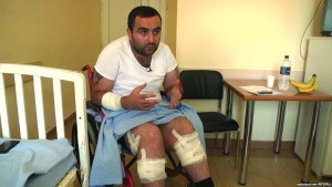 Robert Ananyan, a correspondent for the TV station A1+ injured by riot police, speaks to RFE/RL in a Yerevan hospital, 2Aug2016