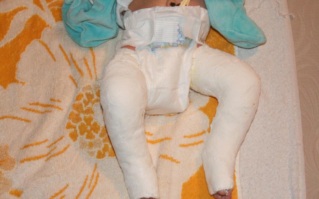 Primer día de tratamiento: la primera escayola