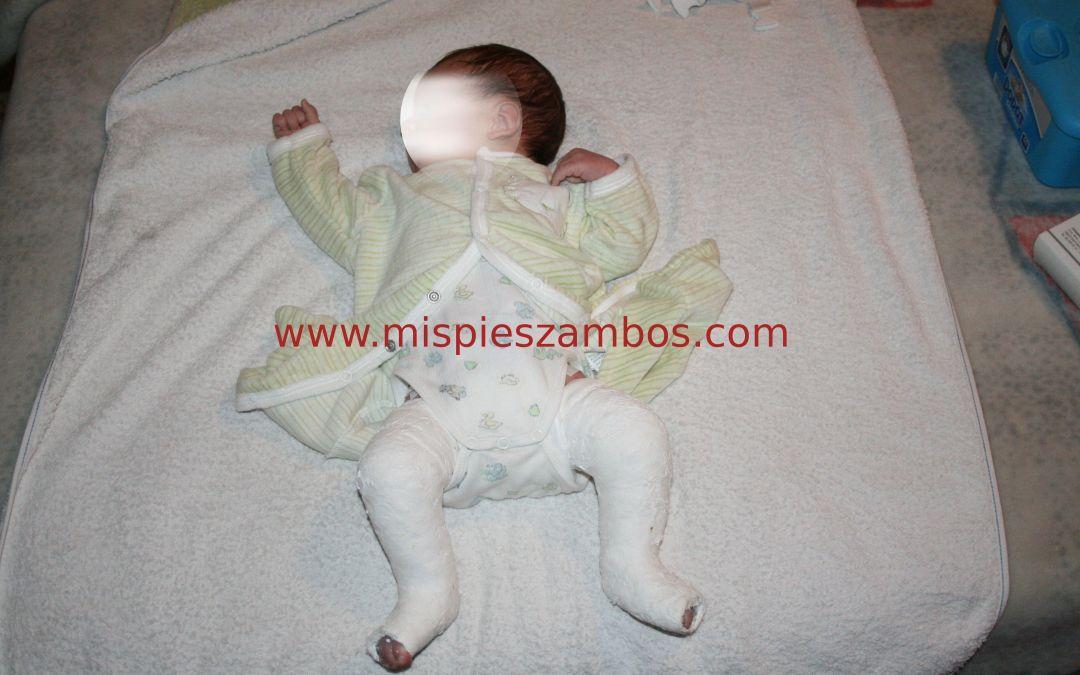 Inconvenientes de las escayolas en un recién nacido