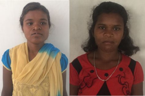 Shobha & Lobha at Sundargarh Mission Site for their Cleft Palate Surgery