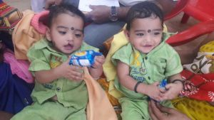 ram & lakshman before cleft surgery